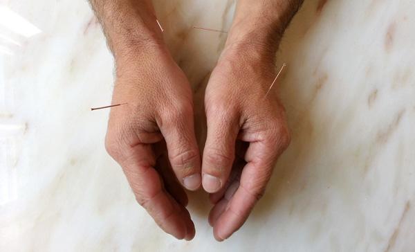 Coclo_akupunktur_hænder_01